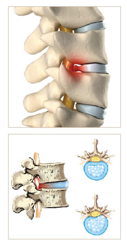 Spine D